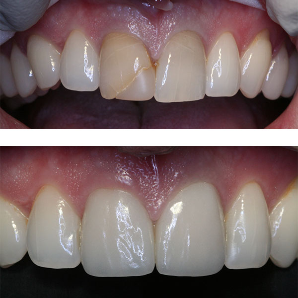 Image result for 1 – Simple bonding in tooth